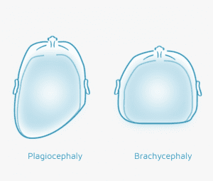 Plagiocephaly and Brachycephaly Technology in Motion