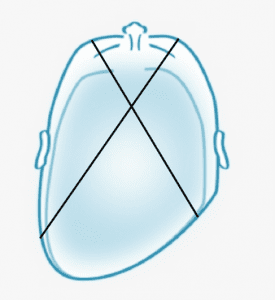 Measuring Plagiocephaly with a craniometer