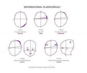 Argenta Scale to Measure Plagiocephaly