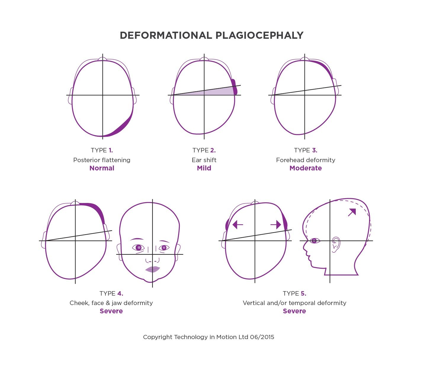 Plagiocephaly - Argenta Scale to Measure different types of plagiocephaly