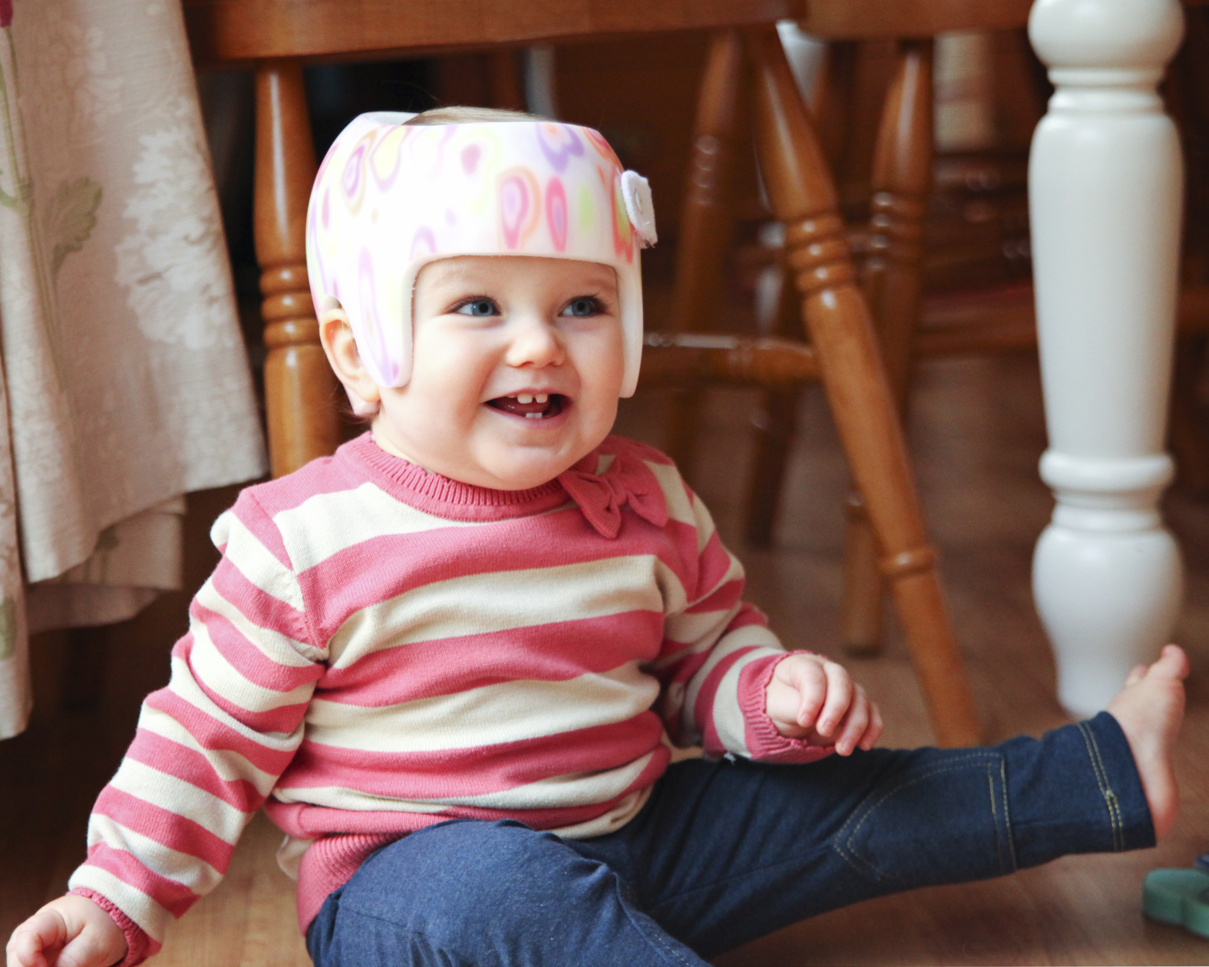 plagiocephaly treatment on the nhs don t give up hope