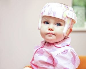 How Illness Affects Wearing a Plagiocephaly Helmet