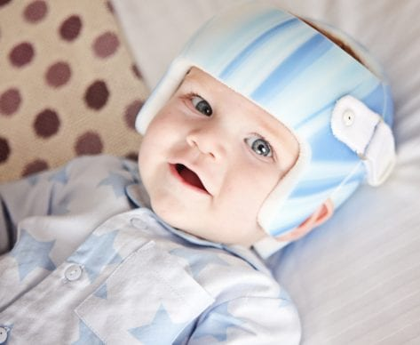 Are Plagiocephaly Pillows for Flat Head Syndrome Safe to Use?