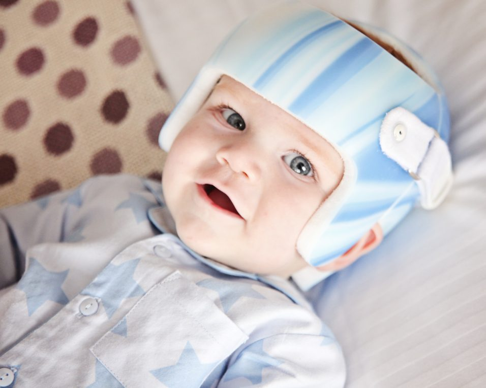 Are Pillows for Flat Head Syndrome Safe to Use For Babies?