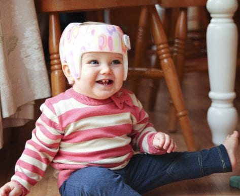 Helmet Treatment for Babies: Why the Controversy?