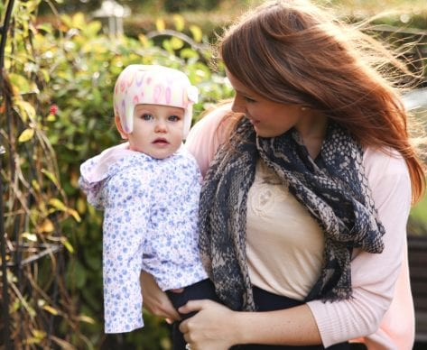 Plagiocephaly Treatment on the NHS: Don't Give Up Hope