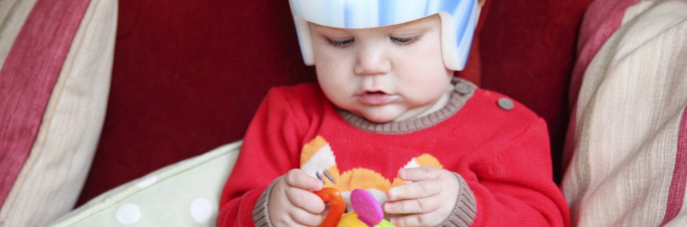 Can Flat Head Syndrome Or Plagiocephaly Helmets Cause Brain Damage?