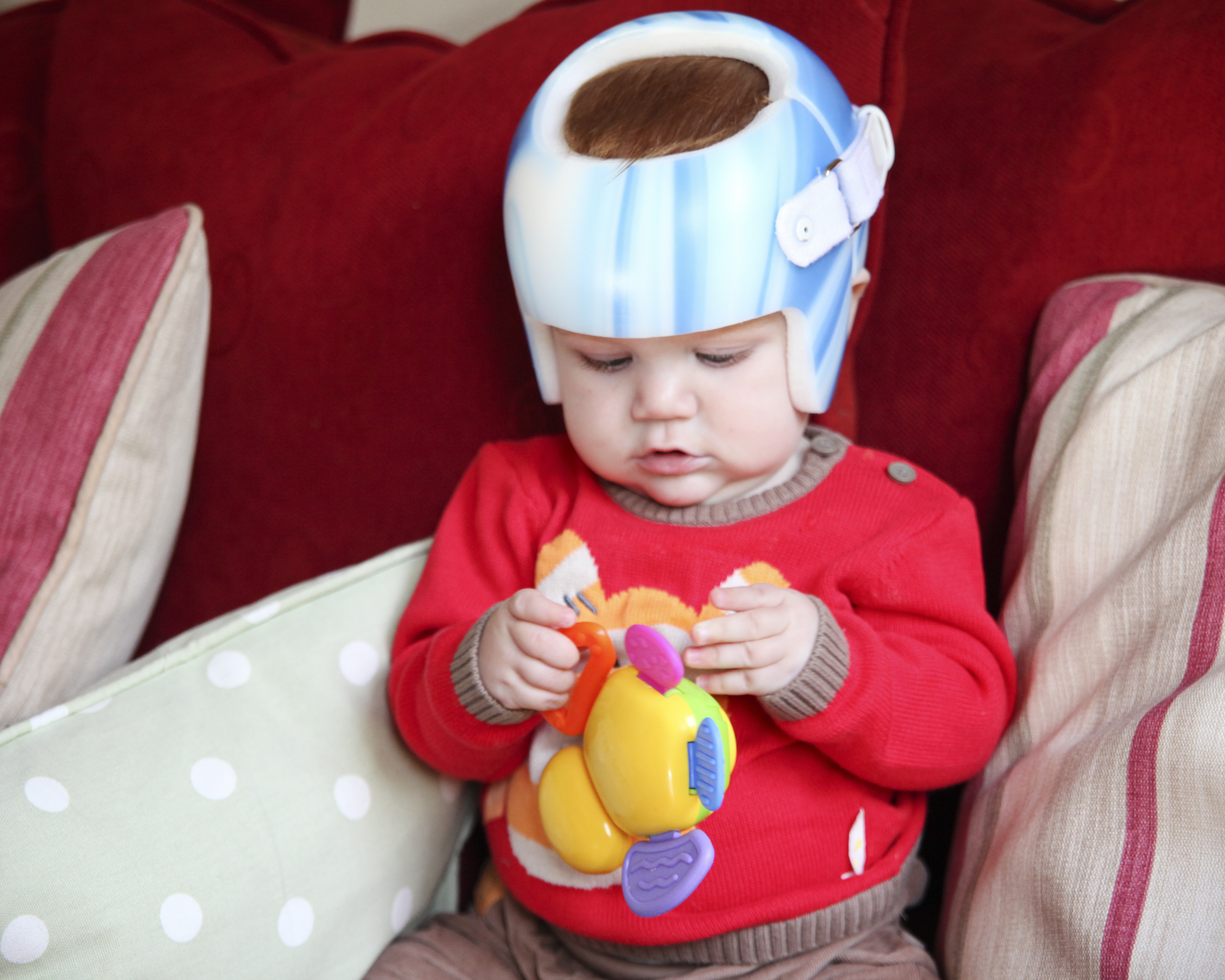 How Mothers Voice Shapes Her Babys >> Can Plagiocephaly Helmets Cause Brain Damage