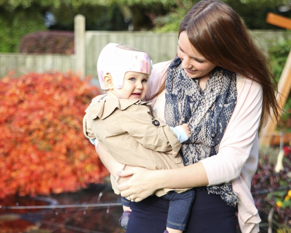 Who Can Treat Plagiocephaly?