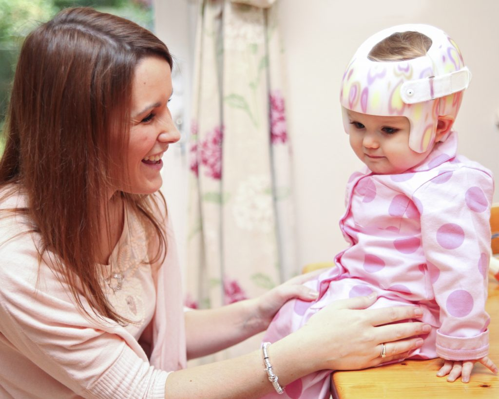 5 Normal Signs That Plagiocephaly Helmet May Not Be Needed