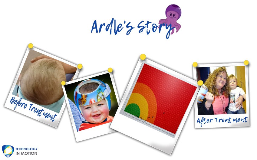 Ardles Story parents plagiocephaly story