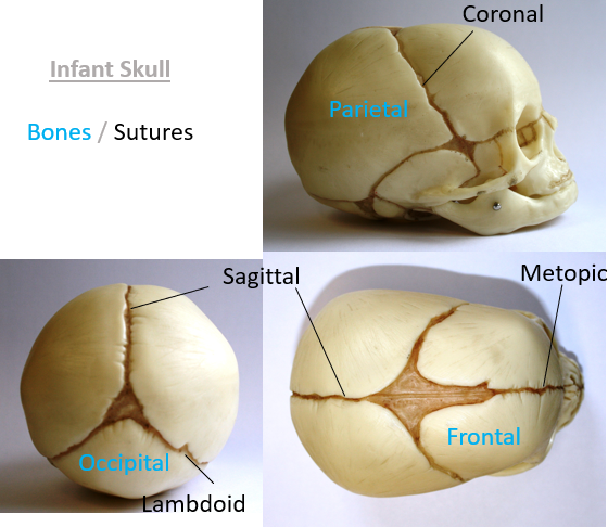 Craniosynostosis-example-Technology-in-Motion