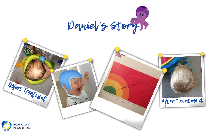 Daniels Story parents plagiocephaly story