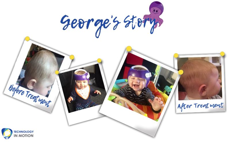 Georges Story Parents Plagiocephaly Story