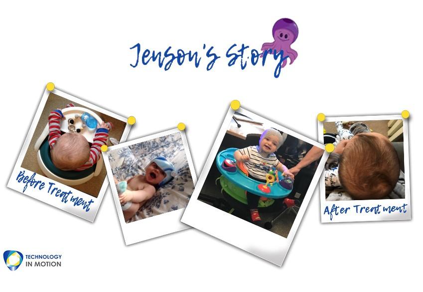 Jensons Story Parents Plagiocephaly Story