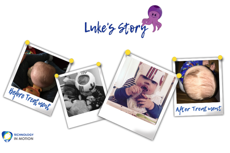 Lukes Story Parents Plagiocephaly Story