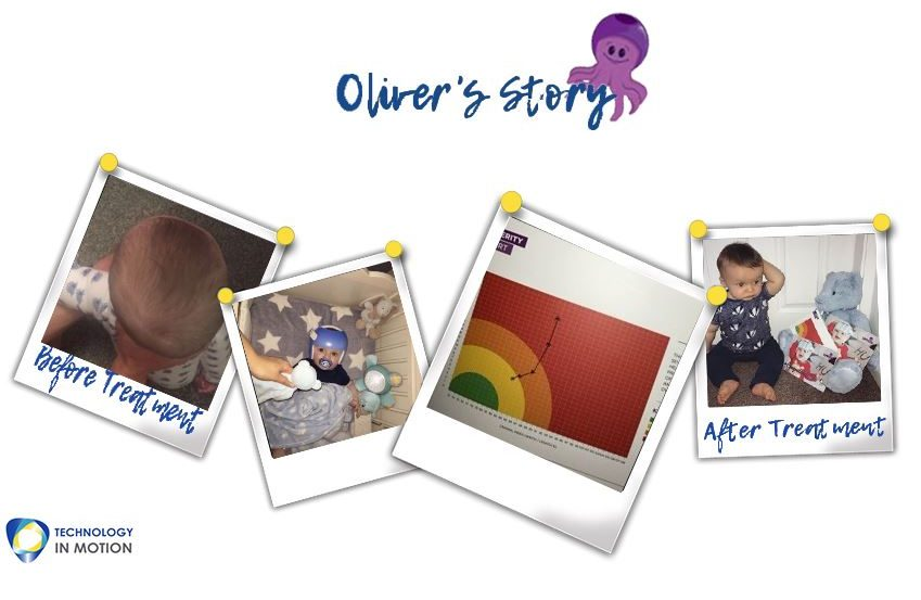 Olivers Story Parents Plagiocephaly Story