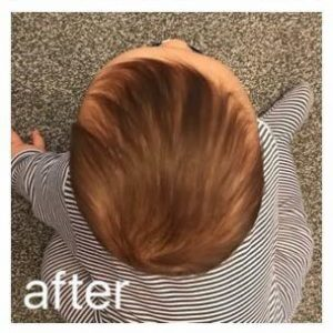 Ollie After Flat Head Treatment