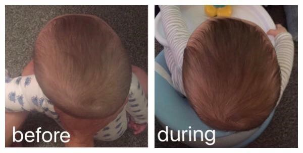 Ollie Before and After Flat Head Treatment