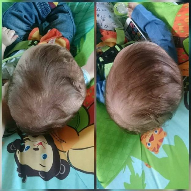 Rocco Before and After Flat Head Treatment