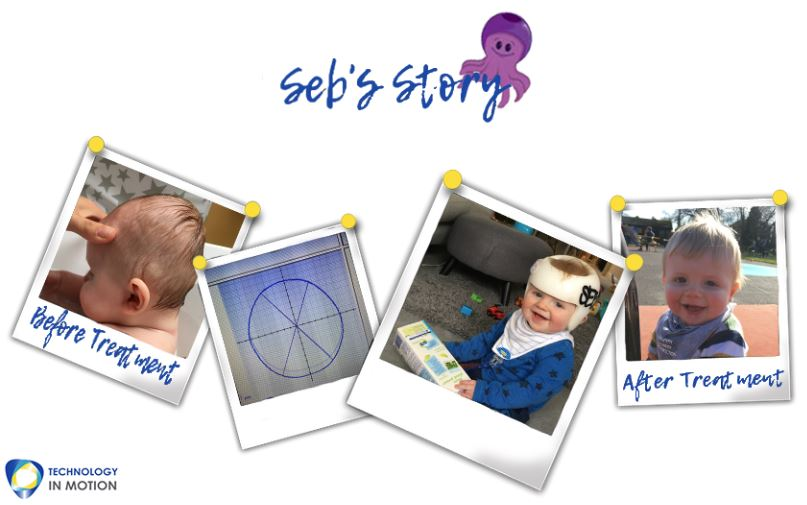 Sebs Story Parents Plagiocephaly Story