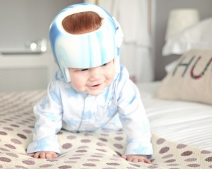 baby undergoing cranial helmet therapy
