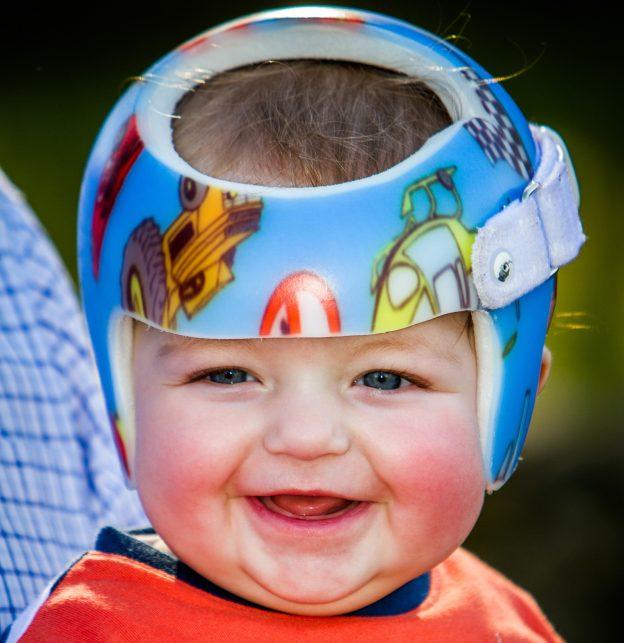 decorating your plagiocephaly helmet 2