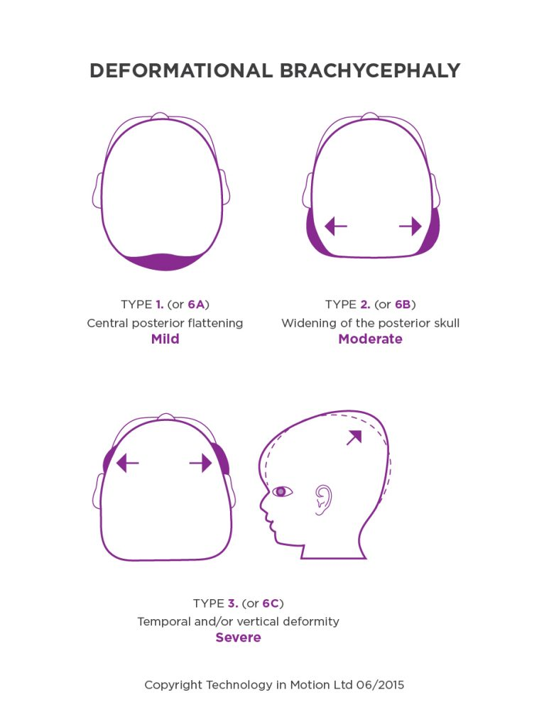 Deformational Brachycephaly Infographic