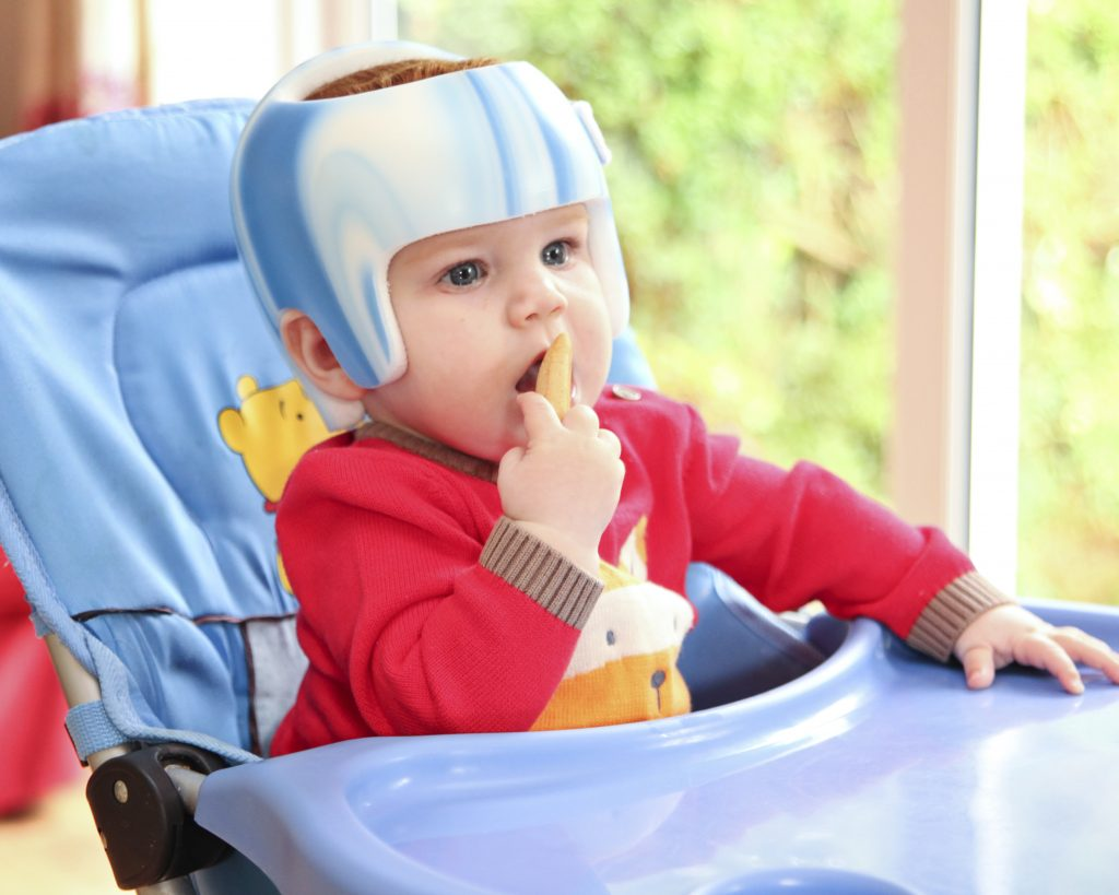 how effective are helmets for plagiocephaly
