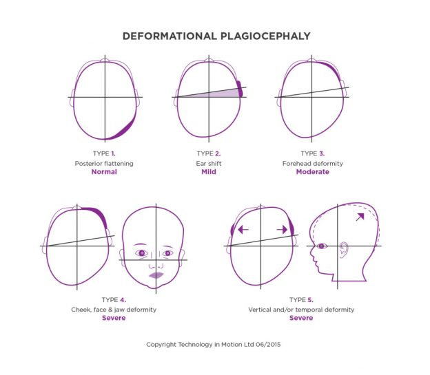 how to identify deformational plagiocephaly diagram infographic