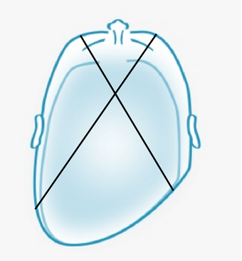 how to identify plagiocephaly diagram
