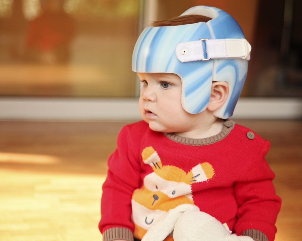 Plagiocephaly and Ear Infections