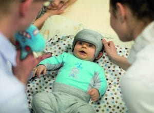 plagiocephaly-treatment-without-helmet