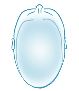 scaphocephaly head shape