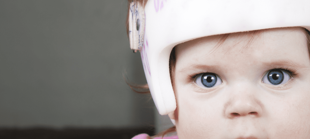 How Effective Are Helmets for Plagiocephaly?