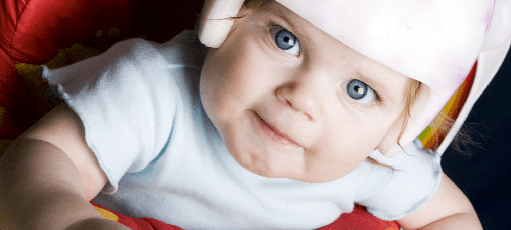 Why Can't You Get a Plagiocephaly NHS Helmet?